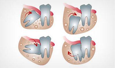 ถอนฟันคุดและรากฟันเทียม
